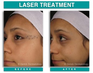 TattooRemoval1-300x238