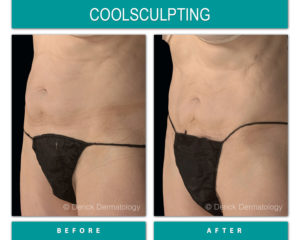 coolsculpting before and after of stomach fat