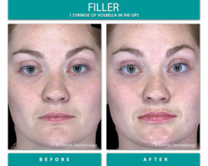 volbella filler on lips before and after picture, front image of girl's face