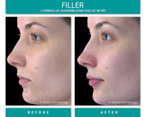 Before and After Image of juvederm filler