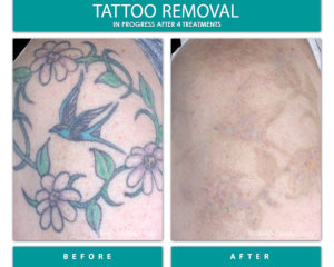 tattoo removal before and after, bird tattoo