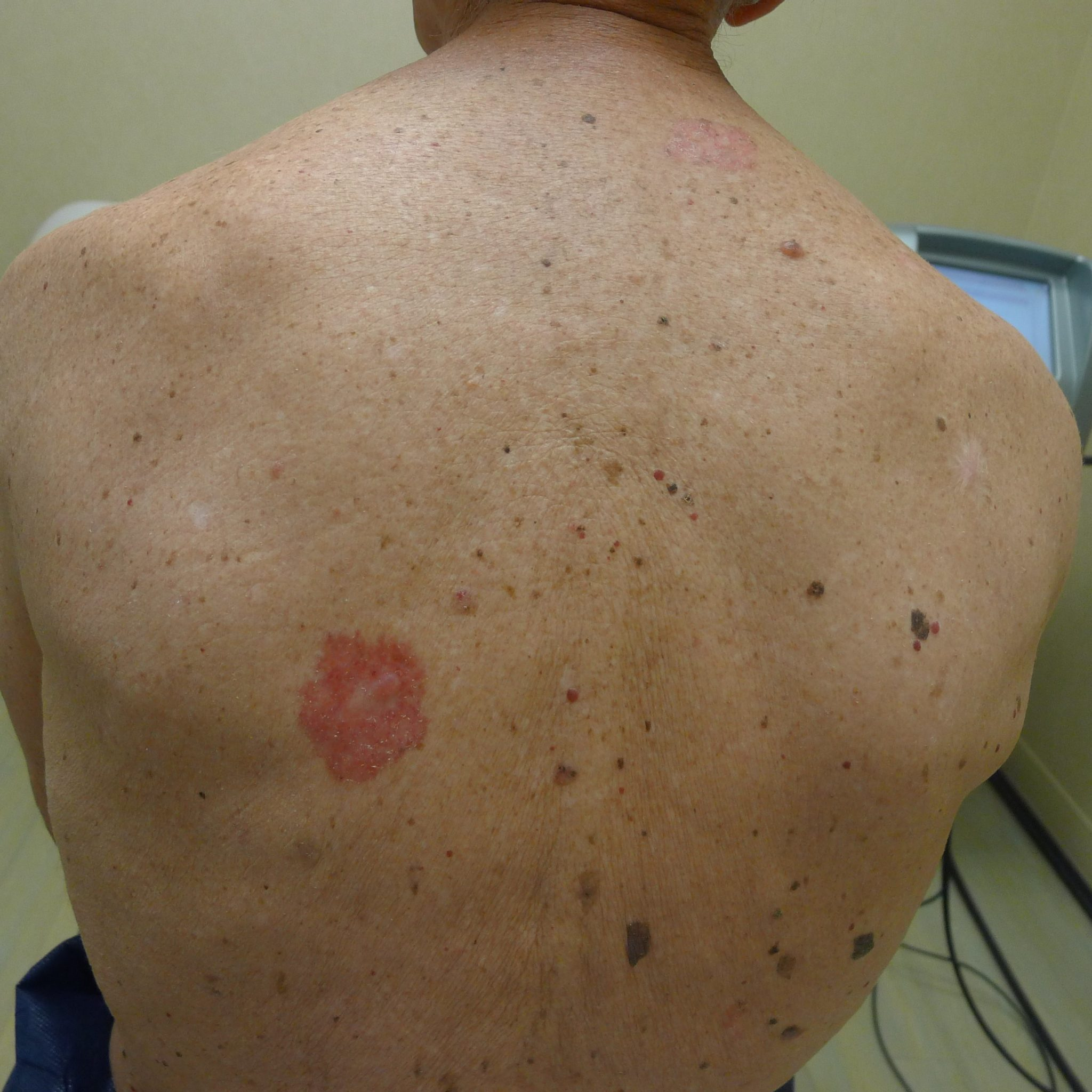 Skin Cancer Symptoms Pictures Photos Types Signs Melanoma