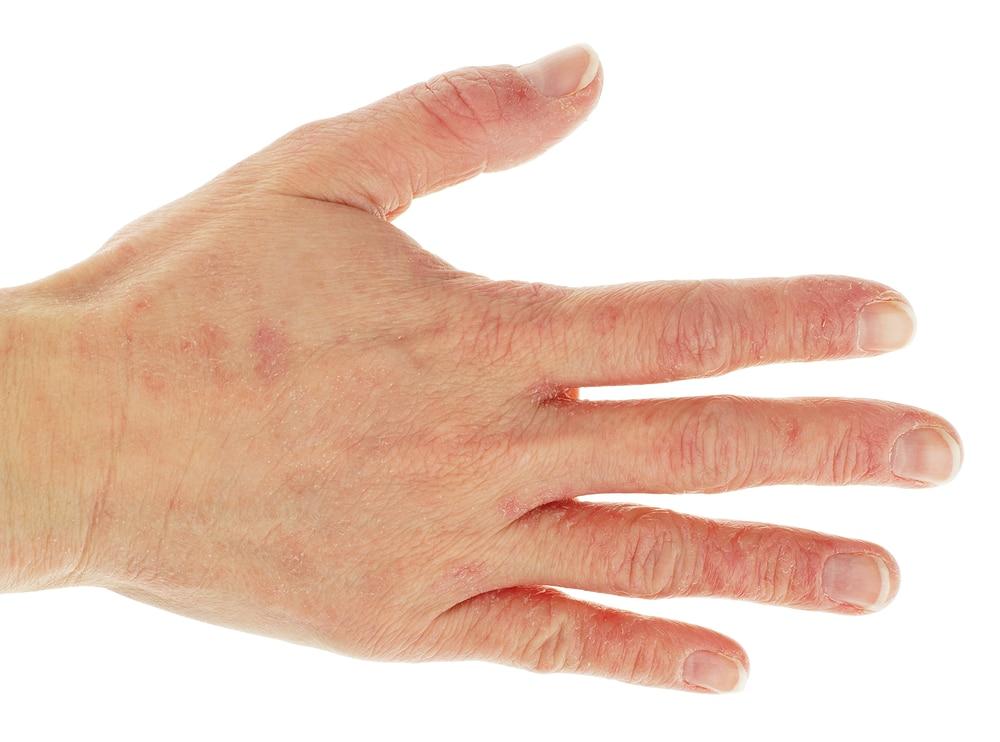 Hand Dermatitis