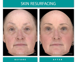 Before and After Image of Skin Resurfacing