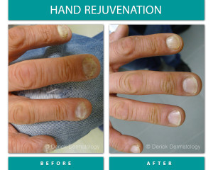 Before and After Image of Hand Rejuvenation