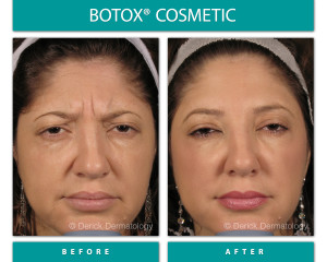 Before and After Image of Botox Cosmetic