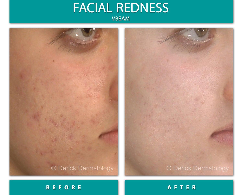 cure-facial-redness