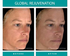 Before and After Image of Global Rejuvenation