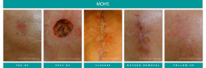 Before and After Image of Mohs Surgery