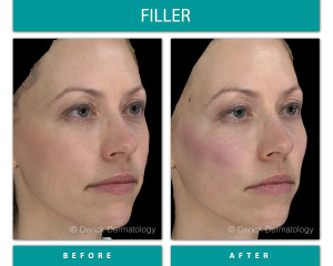 Before and After Image of Filler
