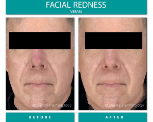 Before and After Image of Facial Redness