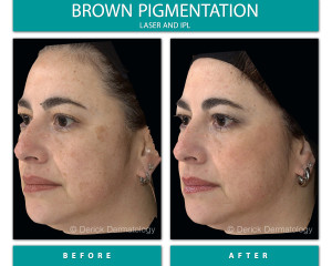 Before and After Image of Brown Pigmentation