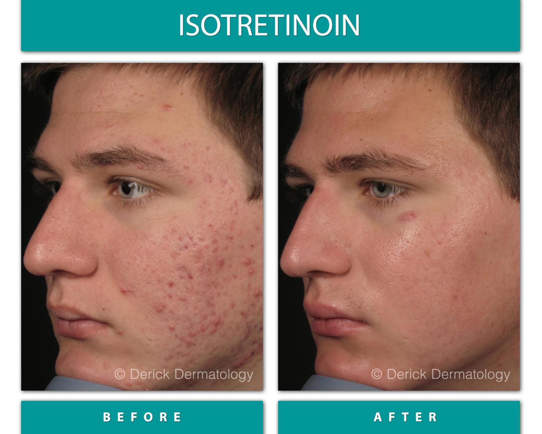 Dermatologist Chicago | Derick Dermatology