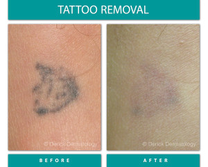 Before and After Image of Tattoo Removal