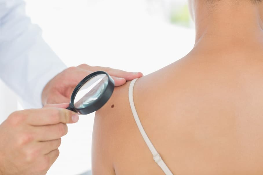 doctor checking for skin cancer on patient's shoulder with magnifying glass