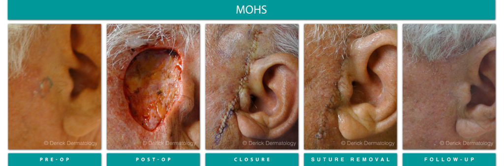 Mohs surgery before and after of cancer removed next to ear