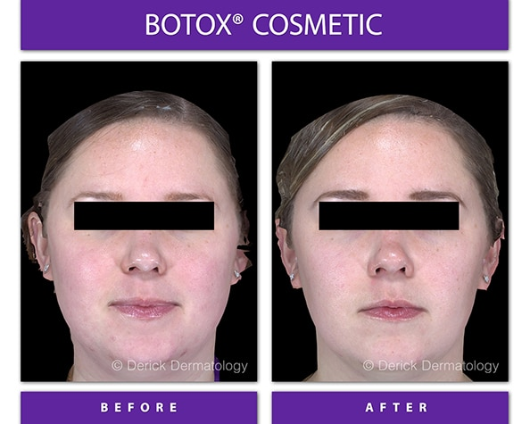 masseter botox before and after of face