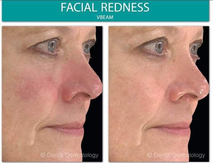 before and after of woman's redness on cheek with vbeam