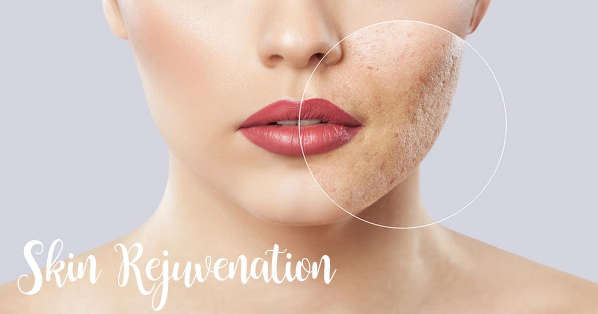 Laser Skin Rejuvenation Chicago